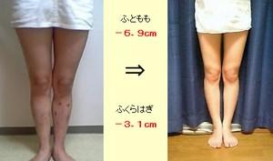 脚やせ小林・山梨.jpg